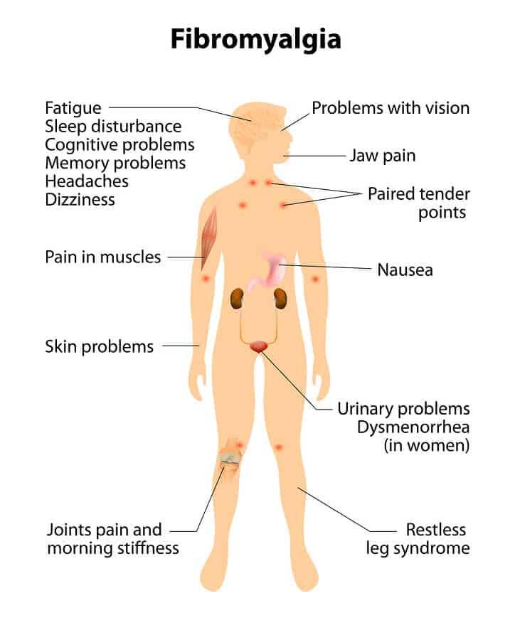 Natural Treatment For Fibromyalgia Video