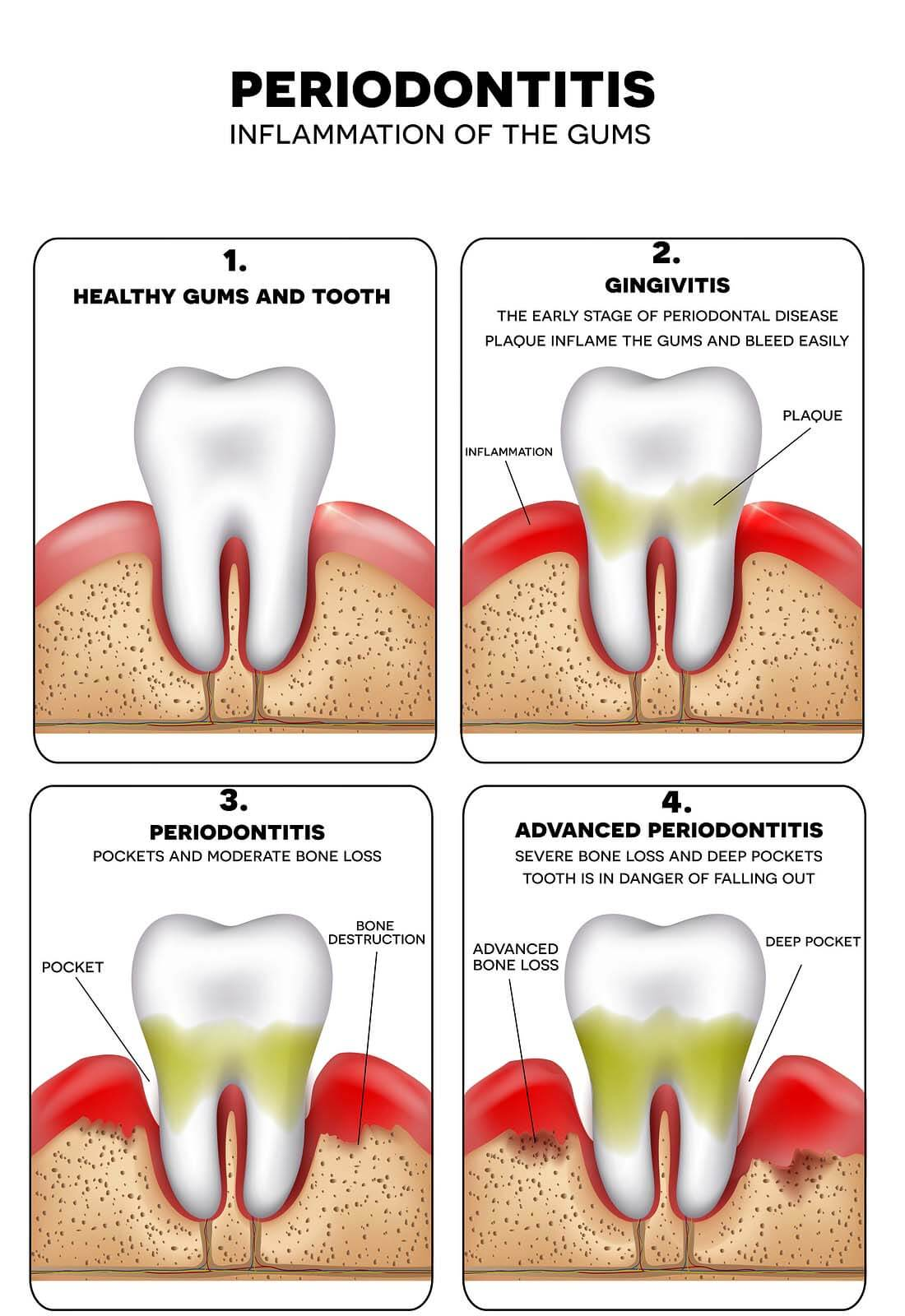 Periodontal disease - what are the causes, symptoms, treatment and prevention 30